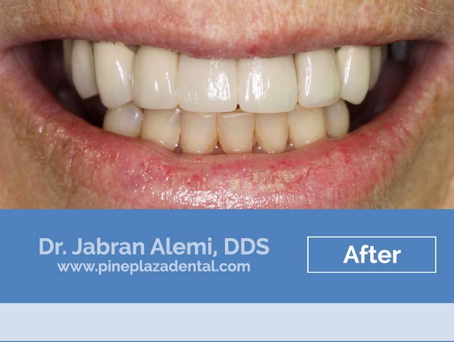 Snap on Dentures in Las Vegas I Pine Plaza Dental in Las Vegas